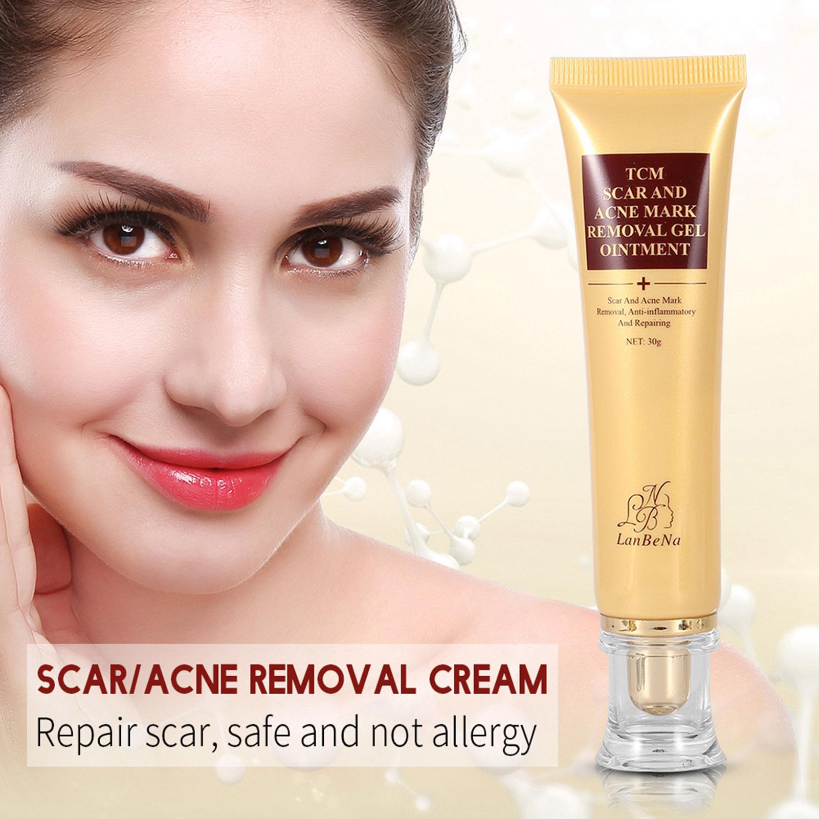 lanbena acne scar removal cream skin repair face cream acne spots treatment 30g ebay. Black Bedroom Furniture Sets. Home Design Ideas