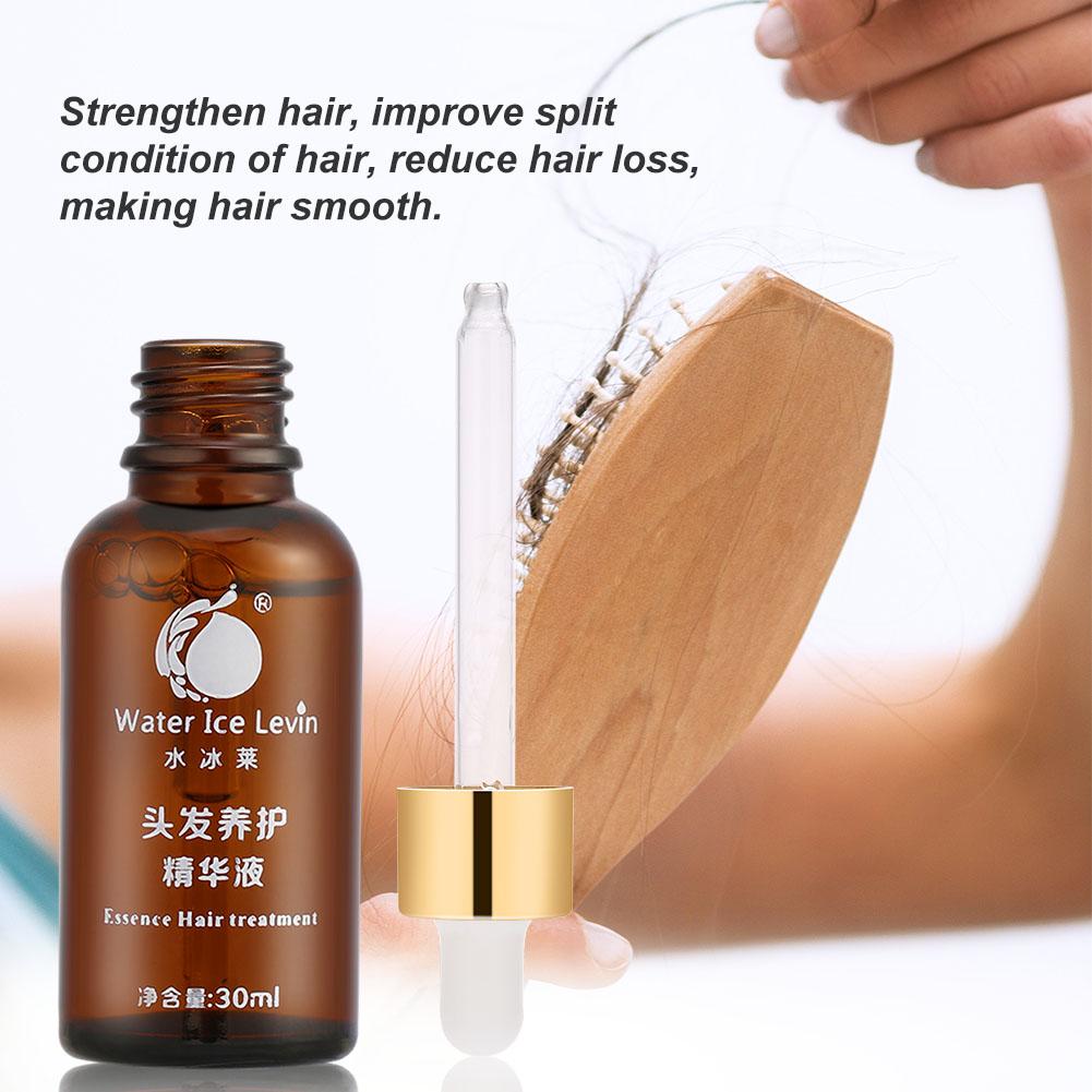 ginger as hair loss treatment essay