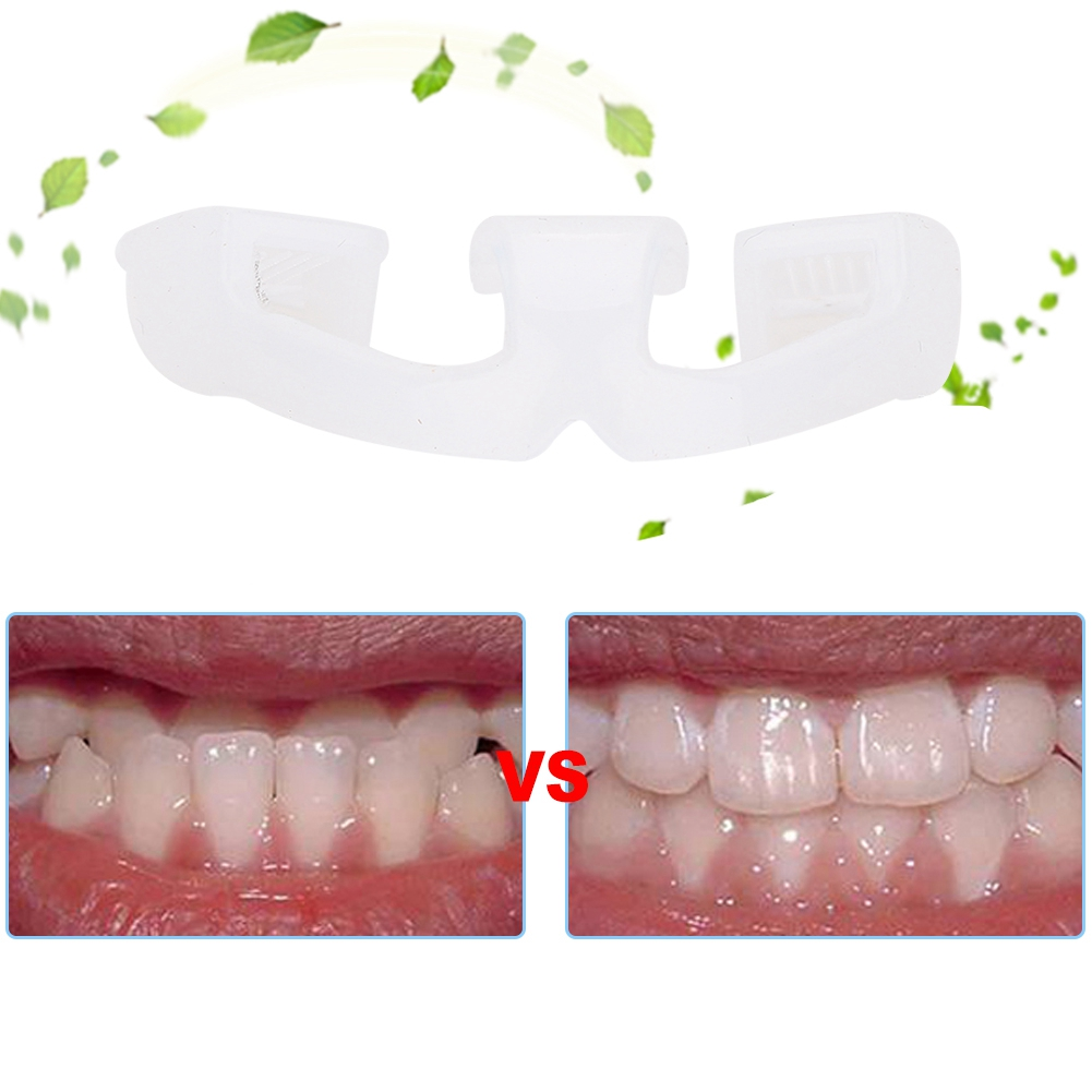 Tooth-Orthodontic-Appliance-Alignment-Braces-Oral-Hygiene-Dental-Teeth-Care thumbnail 5