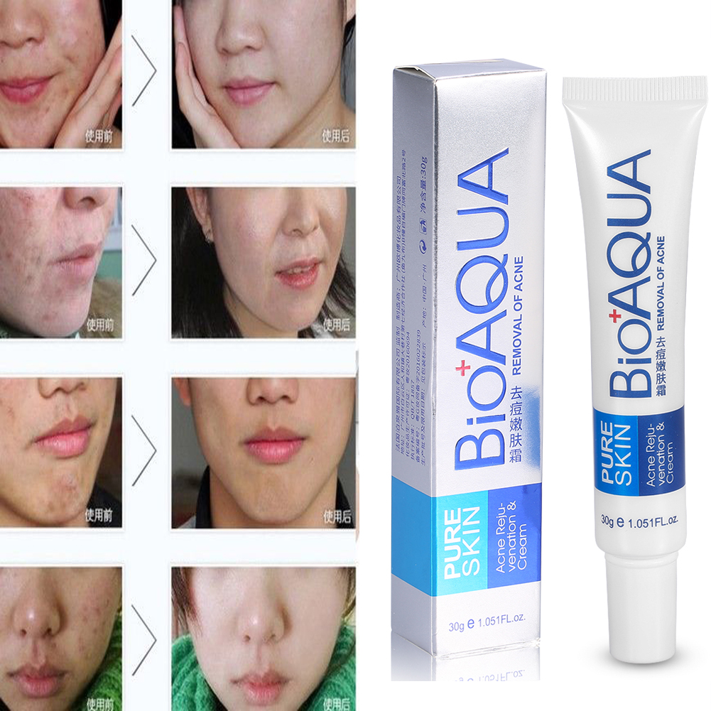 bioaqua face skin care acne removal cream spots scar blemish marks authentic 973777816986 ebay. Black Bedroom Furniture Sets. Home Design Ideas
