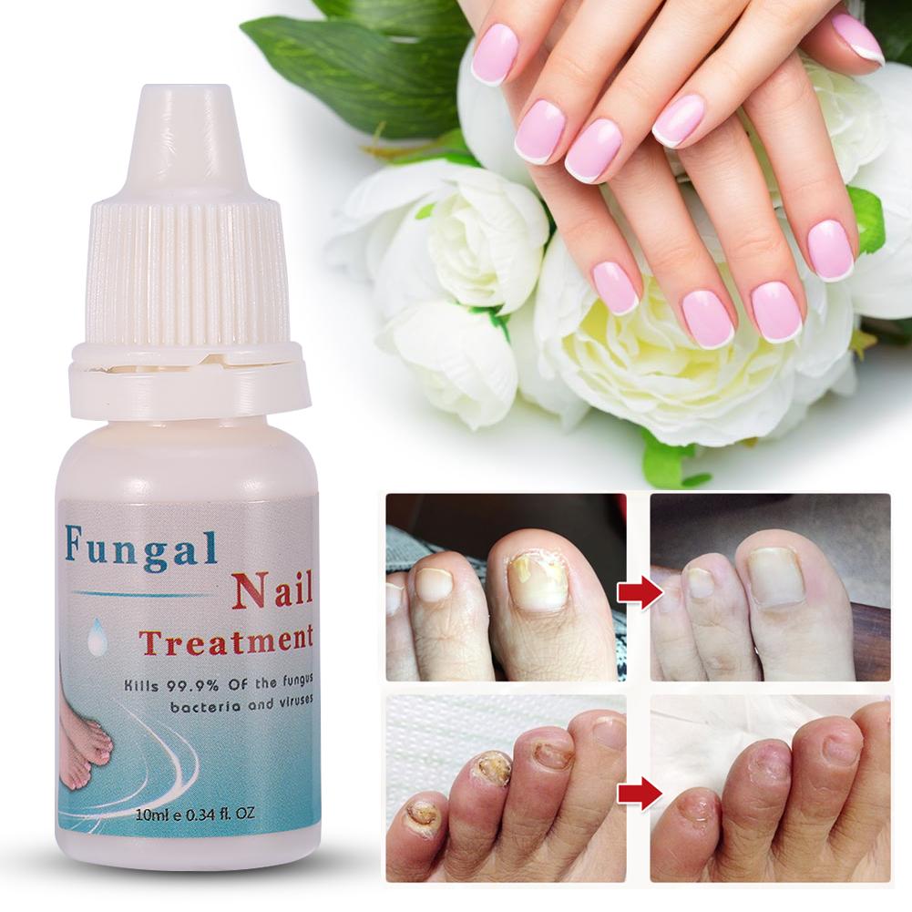 10ml Fungal Nail Treatment Liquid Nails Feet Fungus Removal Nail Art ...