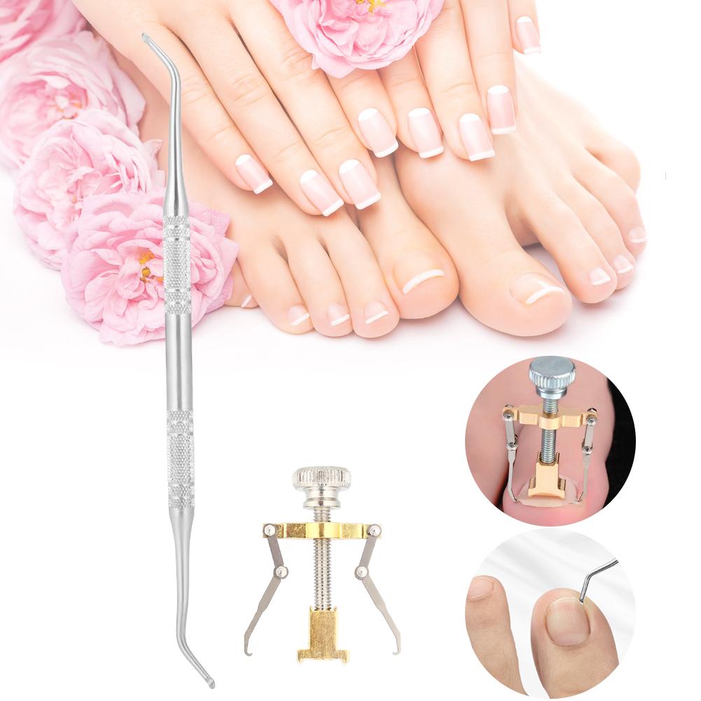 Ingrown Toe Foot Nail Correction Fixer Nail Pedicure Toenail ...