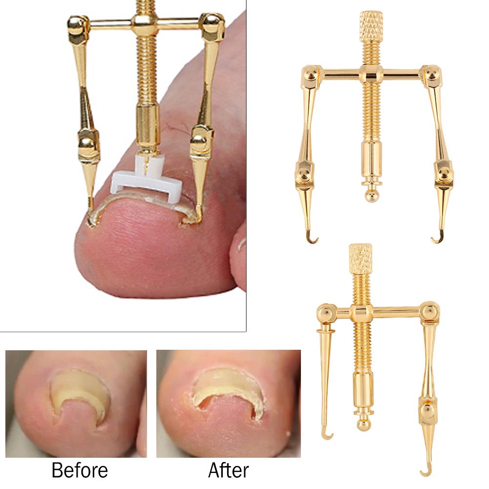 Pure Copper Ingrown Toe Nail Corrector Toenail Fixer Recover Tool ...